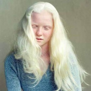 Female with Albinism