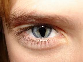 Individual with a Coloboma that creates a keyhole appearance to the iris.