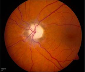In Optic Atrophy, the optic nerve appears very pale.